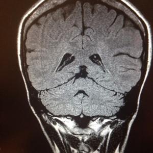 My  brain looks sad
